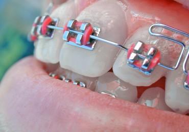 aparelho-dental-1569091-1280x960